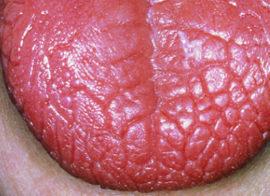 Болит язык сбоку, посередине, как будет обжегся: причины дискомфорта, медикаменты и народные способы лечения