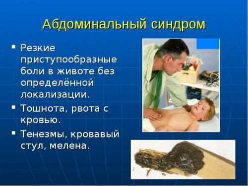 Болит живот в области пупка - 12 причин, лечение, профилактика