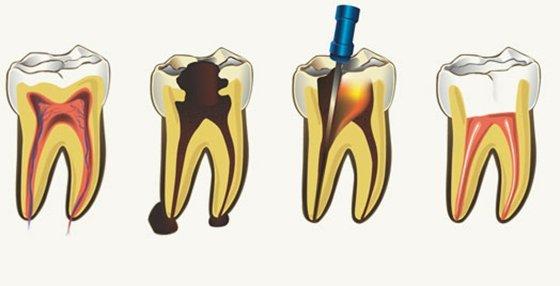 Болит зуб при беременности: что делать, чем обезболить в домашних условиях