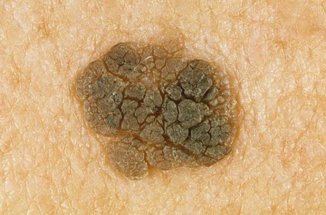 Бородавки и рак: как вылечить новообразования в домашних условиях