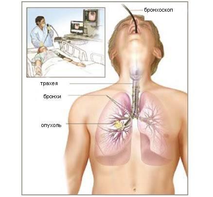 Бронхоскопия легких - что это такое, как делают и для чего нужно
