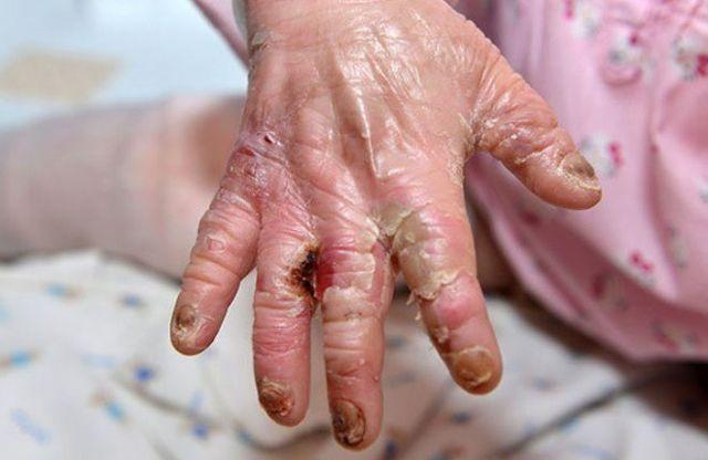 Буллезный эпидермолиз или болезнь «бабочки»: причины возникновения и типы патологии, поддерживающая терапия и продолжительность жизни