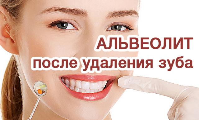 Что делать после удаления зуба мудрости: чем полоскать для быстрого заживления раны