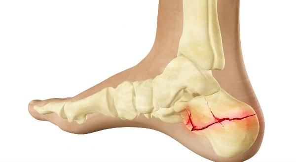 Что делать при переломе пяточной кости со смещением и без него: диагностика проблемы
