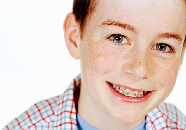 Что лучше зубная пластика или брекеты для детей: инструкция к установке