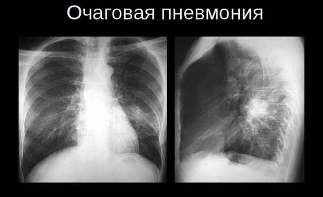 Что означает результат «корни тяжистые» во флюорографии?