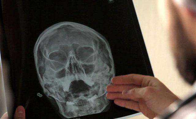 Что показывает и как делают рентген головы при сотрясении у ребенка и взрослого