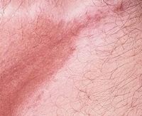 Что такое эритразма у женщин и мужчин, признаки, как проявляется?