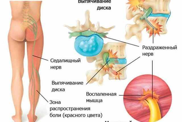 Что такое ишиас: причины развития, характерные симптомы, лечение в домашних условиях