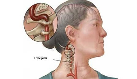 Что такое синдром позвоночной артерии: этапы патологии, характерные симптомы, диагностика и особенности терапии