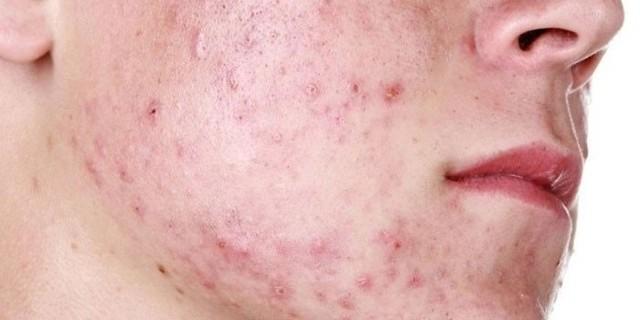 Что такое стафилококковая инфекция и чем она опасна: симптомы и причины развития
