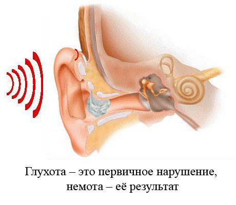 Что такое сурдомутизм, глухонемота, передается ли по наследству?