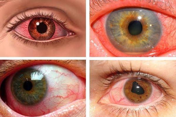 Что такое увеит глаза: как проявляется передний и задний увеальный тракт