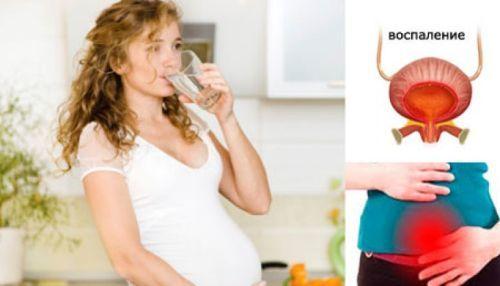 Цистит при беременности: симптомы и лечение в домашних условиях, в первом триместре