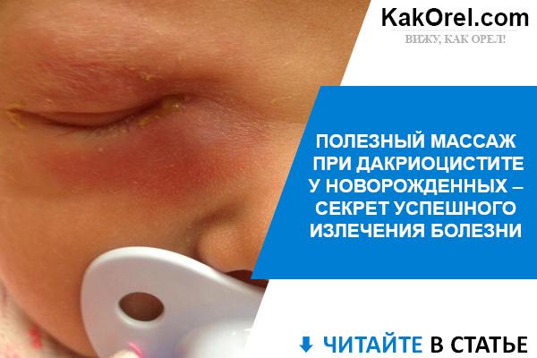 Дакриоцистит у новорожденных: причины заболевания, типичные симптомы, принципы лечения и меры предосторожности