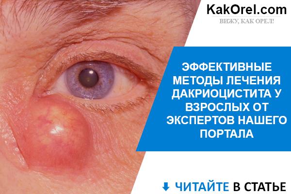 Дакриоцистит у взрослых: причины патологии, типичные признаки, лечение в клинике и в домашних условиях