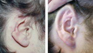 Деформация ушных раковин: отличия врожденной и приобретенной формы, лечение отопластикой