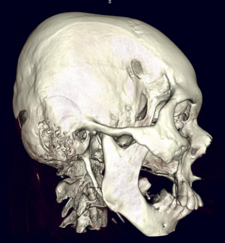 Деформирующий остеит костей или болезнь Педжета: причины развития, основные симптомы, диагностика и принципы лечения