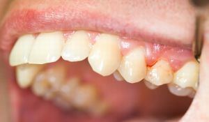 Дентамет гель стоматологический: состав, инструкция по применению, аналоги