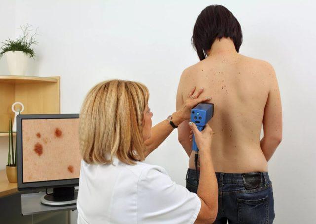 Дерматоскопия: показания и противопоказания к обследованию, проведение процедуры, расшифровка результатов