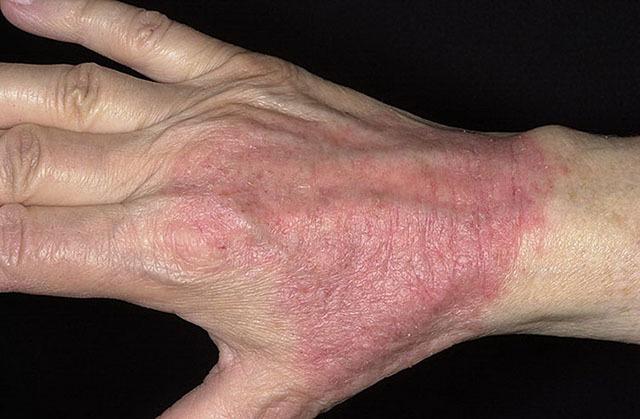 Дерматозы: симптомы, причины развития, виды, медикаментозные методы лечения и народная медицина
