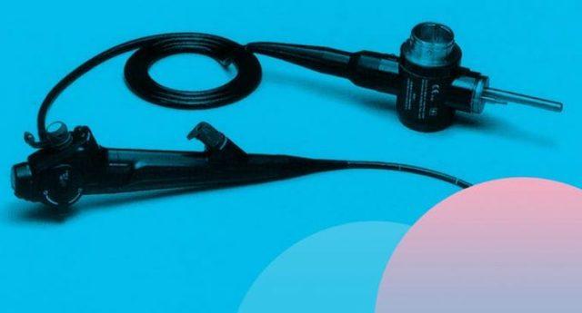 Диагностическая и лечебная гистероскопия матки в гинекологии: описание исследования, показания, осложнения