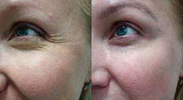 Диспорт: фото до и после, осложнения и побочные эффекты, противопоказания