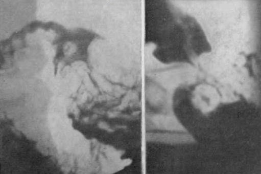 Доброкачественные опухоли желудка: причины развития, клинические признаки, принципы лечения и возможные осложнения