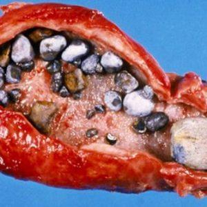 Дуоденит: симптомы и лечение, виды дуоденита, диета при дуодените двенадцатиперстной кишки