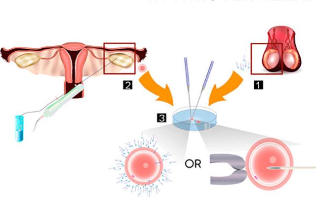Двойни и близнецы (многоплодная беременность) при ЭКО: какие бывают двойни?