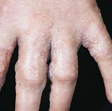 Экзема (высыпание на коже): стадии, как проявляется у взрослых, почему усиливается сыпь?