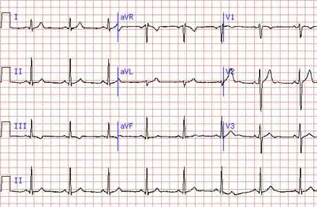Электрокардиограмма: как определяется болезнь на ЭКГ, расшифровка результатов