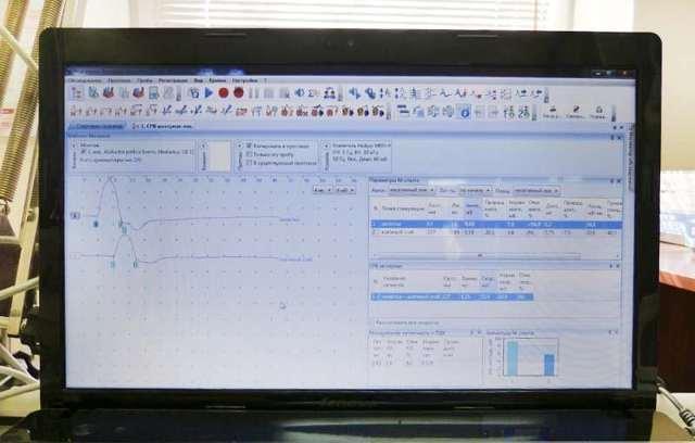 Электронейрография: что это такое и расшифровка результатов исследования нижних конечностей