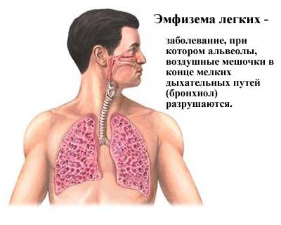 Эмфизема легких: симптомы и причины заболевания дыхательных путей