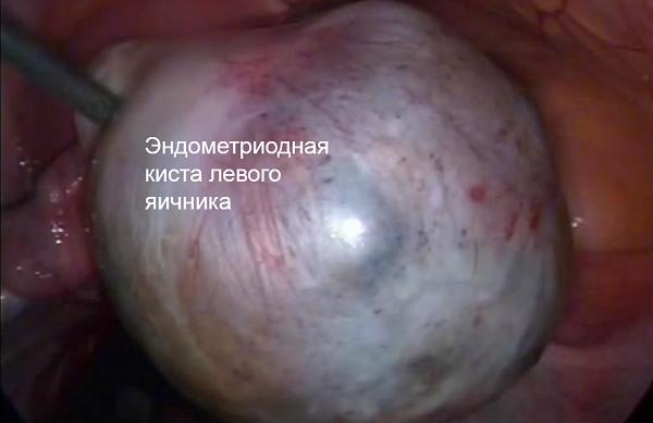 Эндометриоидная киста яичника: причины появления образования в виде пузыря