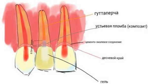 Эндоотбеливание зубов — внутрикоронковое отбеливание: как работает и какие используются препараты