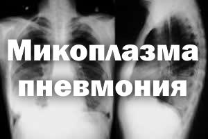 Эпидемия пневмонии 2019: как проявляется и лечение микоплазменной болезни у детей и взрослых