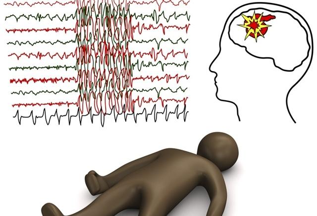 Эпилепсия: причины и симптомы заболевания, первая помощь и методы лечения