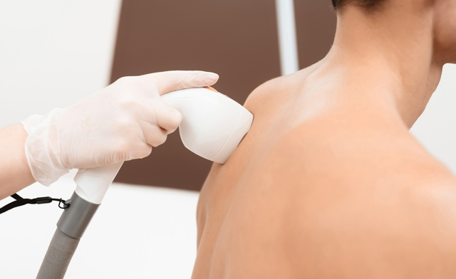 Эпиляция для мужчин: особенности подготовки и проведения процедуры