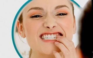 Эрозия зубной эмали — причины кариозного и некариозного поражения