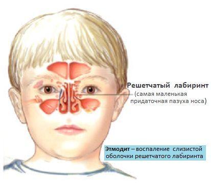 Этмоидит причины и симптомы: как лечиться у взрослых и детей