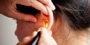 Евстахиит: симптомы и лечение тубоотита, признаки хронического и острого евстахиита, как лечить евстахиит