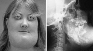 Фиброзная дисплазия: что это такое, причины и описание болезни