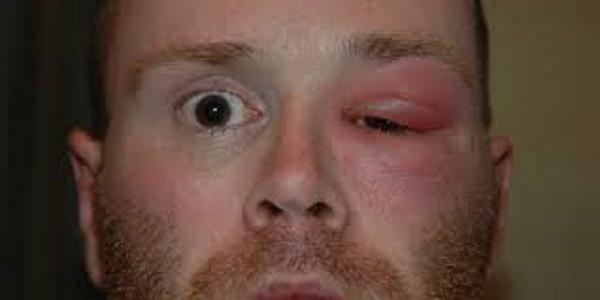 Флегмона глаза — причины, симптомы флегмоны глазницы, века, слезного мешка, диагностика и лечение