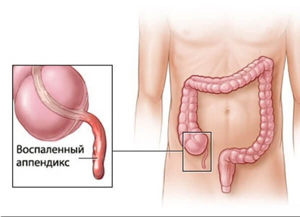 Флегмонозный аппендицит: что это такое, симптомы и лечение патологии