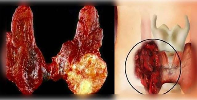 Фолликулярный рак щитовидной железы: провоцирующие факторы, клинические признаки, способы лечения и возможные осложнения