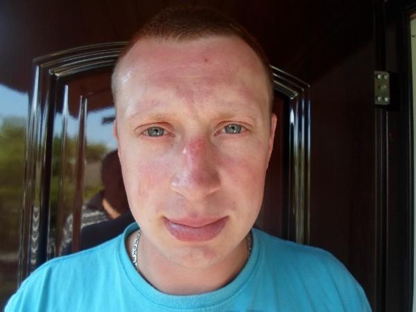 Фотодерматит на лице и теле: причины, симптомы аллергии