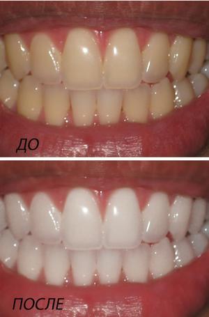 Фотоотбеливание зубов: что это, подготовка к процедуре