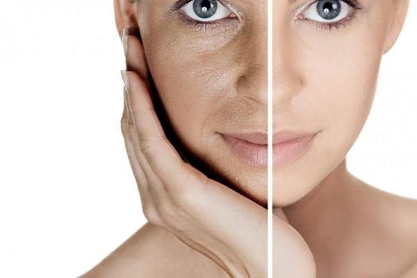 Фотостарение кожи: что это такое и как проявляется, эффективные методы лечения