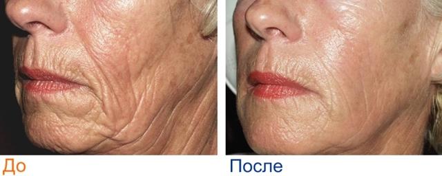 Фракционное лазерное омоложение кожи вокруг глаз: особенности проведения процедуры